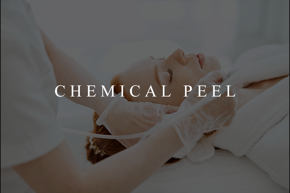 CHEMICAL-PEEL-UPDATED-newimage