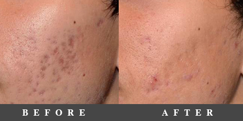 picsure-before-after